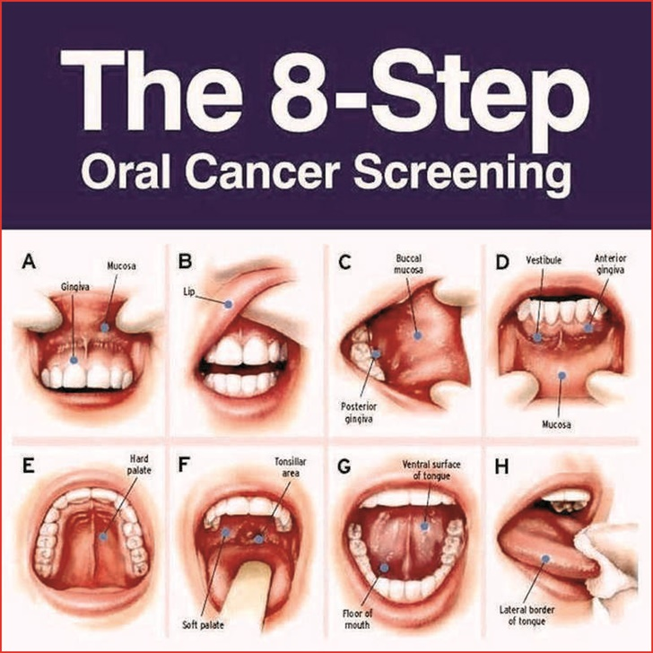 Mouth Cancer Symptoms Pictures