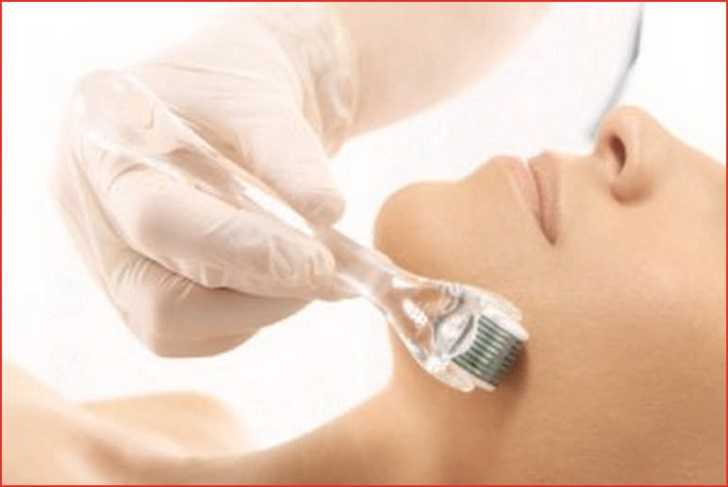 Mesotherapy Near Me