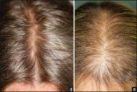 Microneedling For Hair Loss